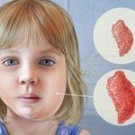 Mumps Large Out Break in Arkansas,
